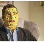 Skittles man – Dokumentarac kako je biti kad si pogođen dugom
